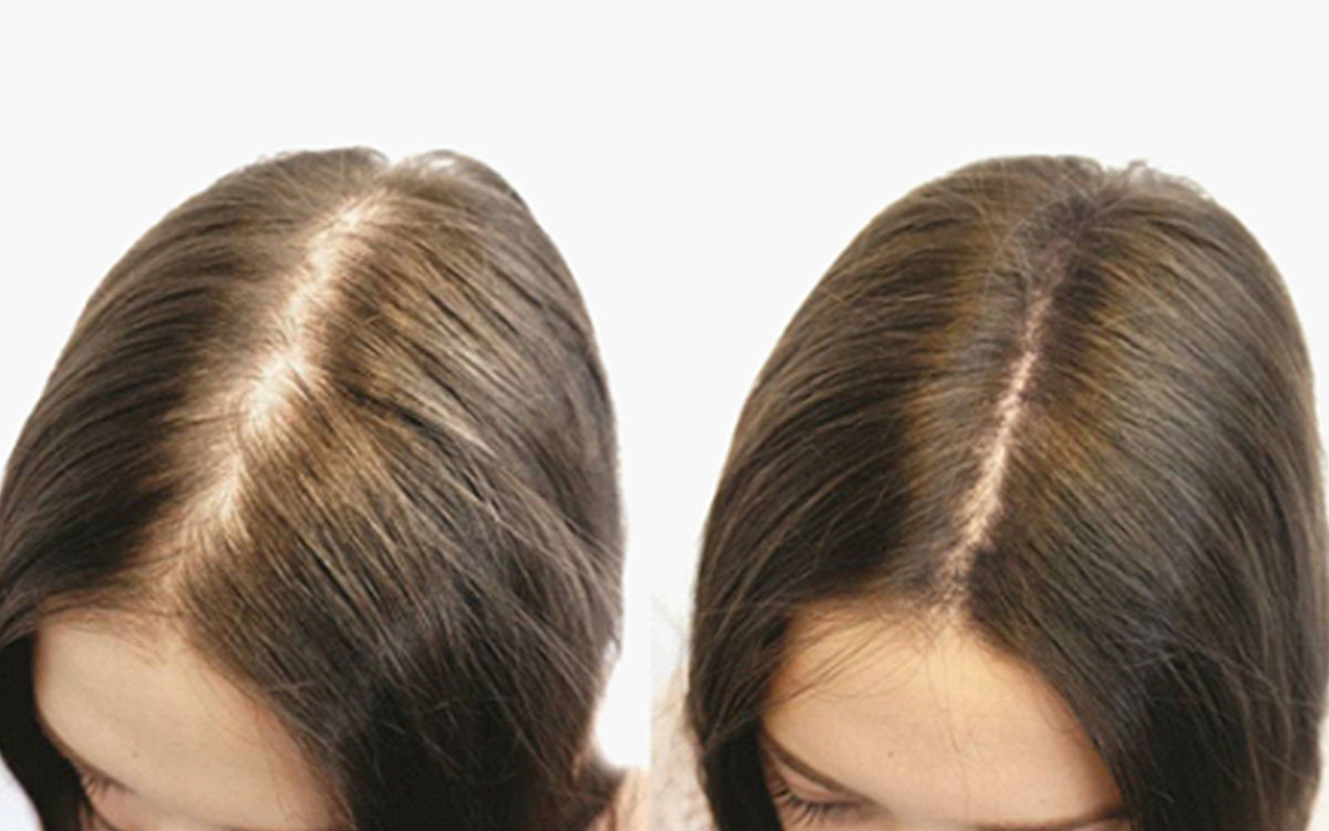 Causes and treatment of androgenic alopecia in Tashkent